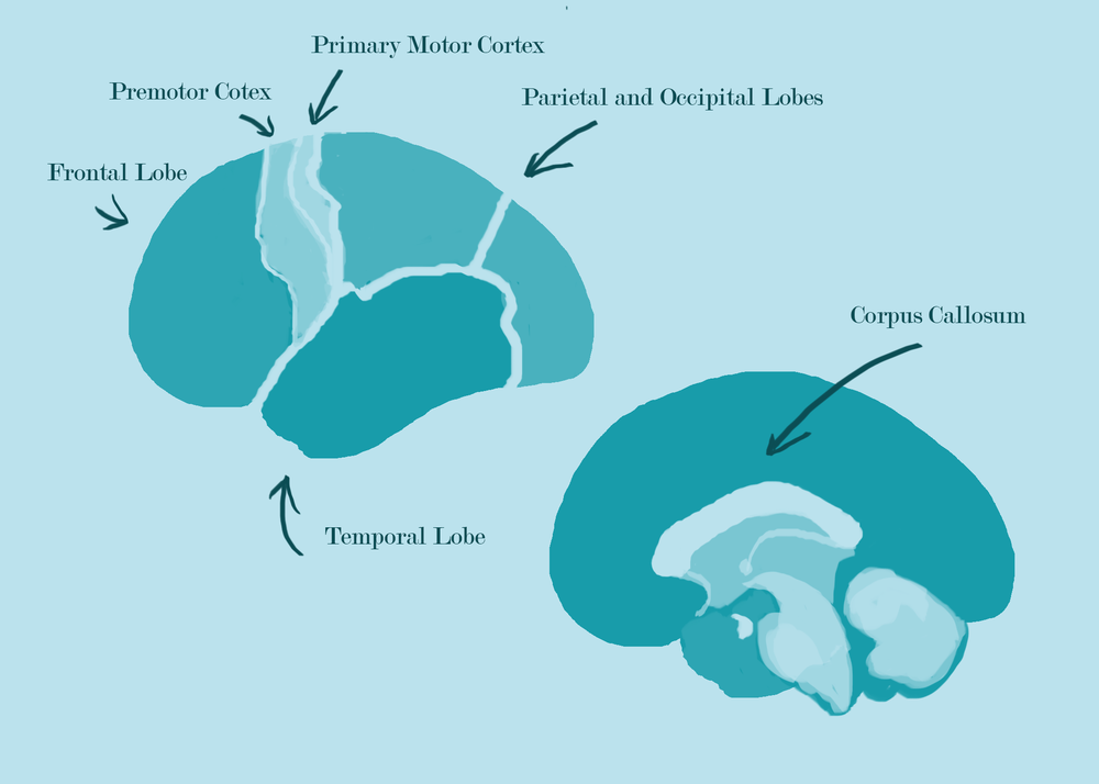 Figure 2: The primary motor cortex (in charge of controlling hand movement) and the premotor cortex (in charge of muscle movement) are disconnected.
