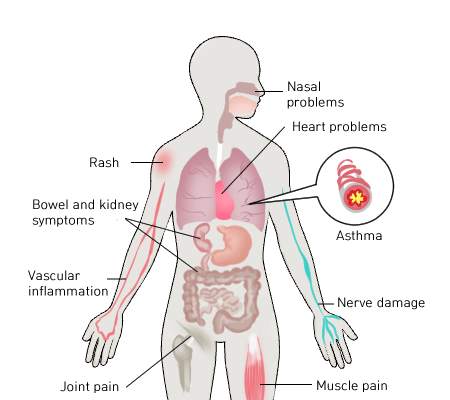 Figure 2. Summarized symptoms of EGPA.  Brigham and Women's Hospital.