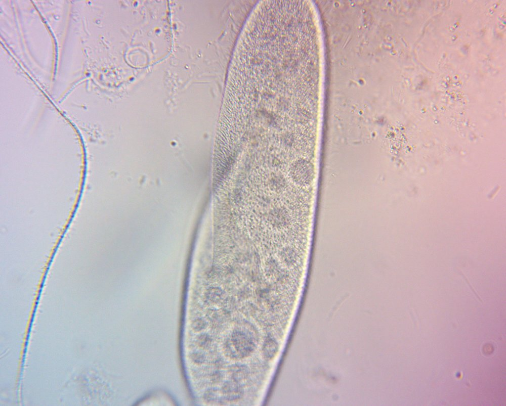 Single-celled paramecium (protazoa). Notice the cilia hairs on the exterior.