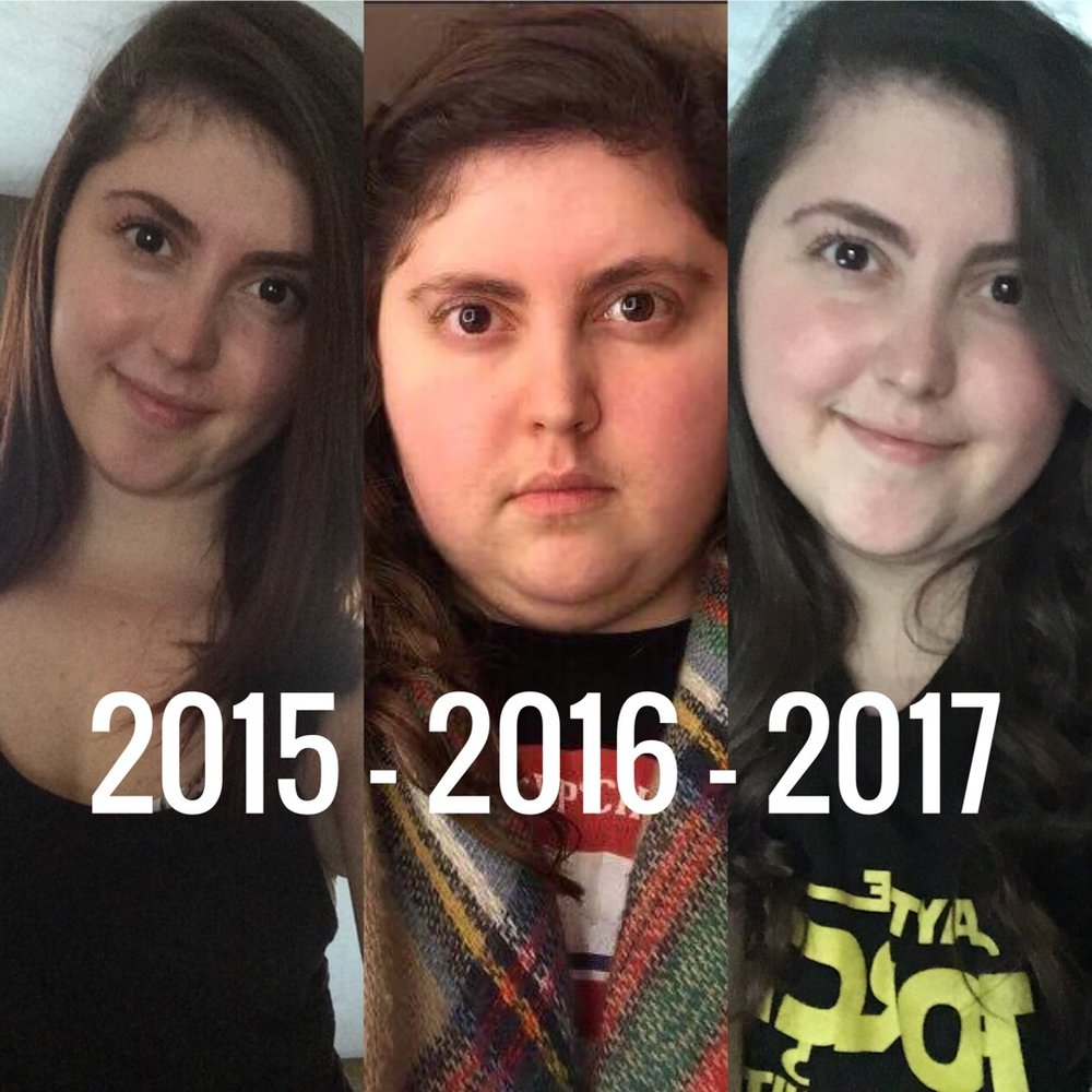 (Morning of surgery January 2017-April 2017)