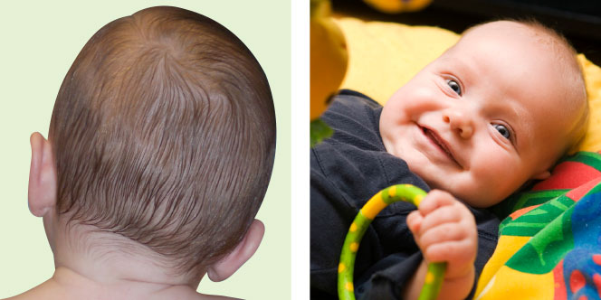 Torticollis and supine position are risk factors.
