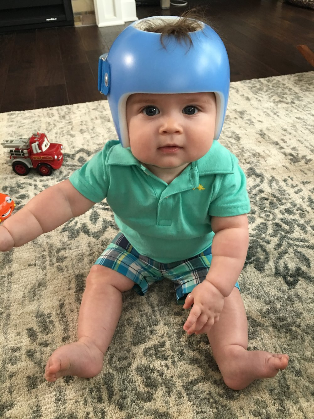 STARband Kids - Baby helmet decalsa family blog that takes you through the experience of a baby with