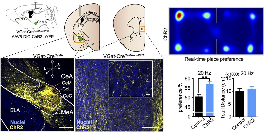 Long-range GABA projection from centromedial amygdala to ventromedial prefrontal cortex modulates reward-related behaviors