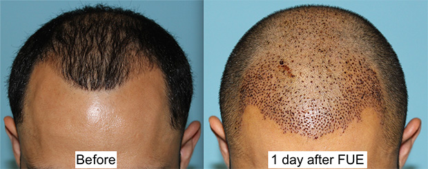 Hair Transplant Facial Plastic Surgery Beverly Hills 4
