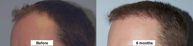 Hair Transplant Facial Plastic Surgery Beverly Hills 6
