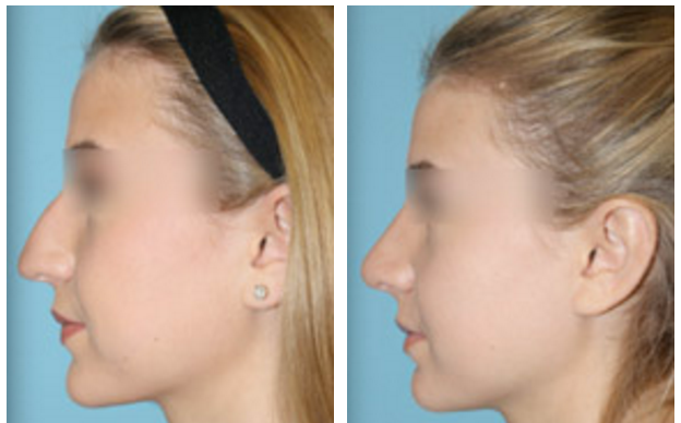 Rhinoplasty Facial Plastic Surgery Beverly Hills