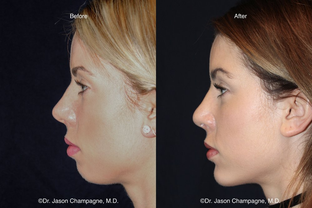 Chin Implant Before and After 1