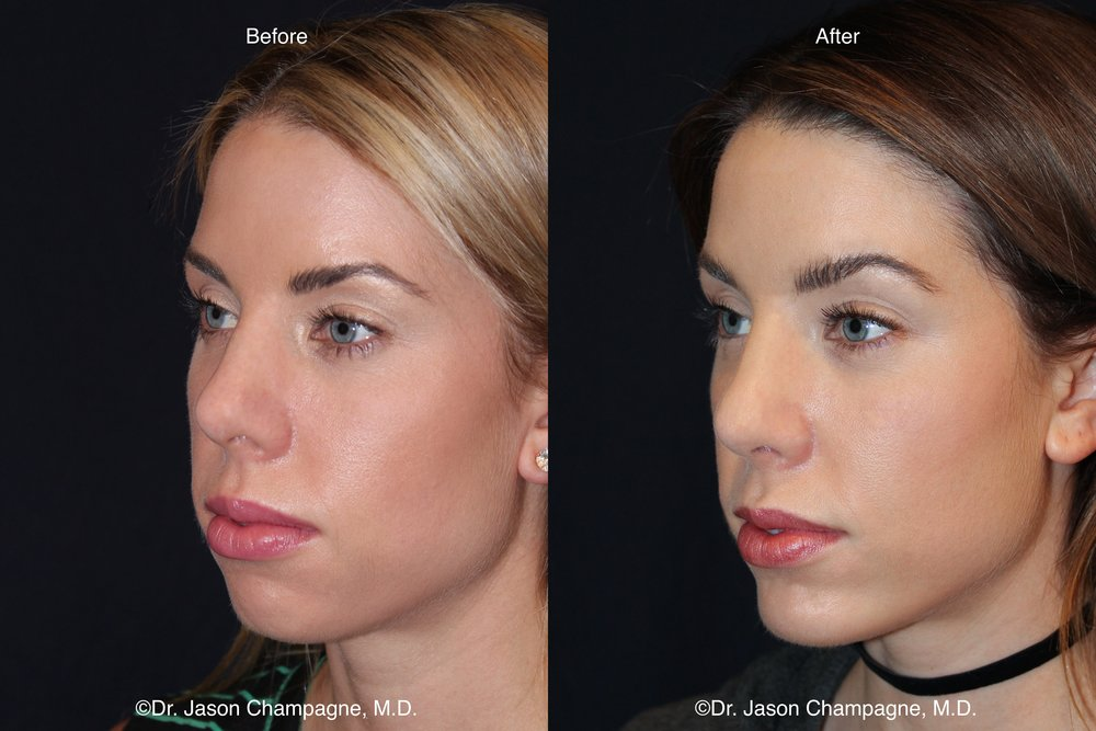 Chin Implant Before and After 2