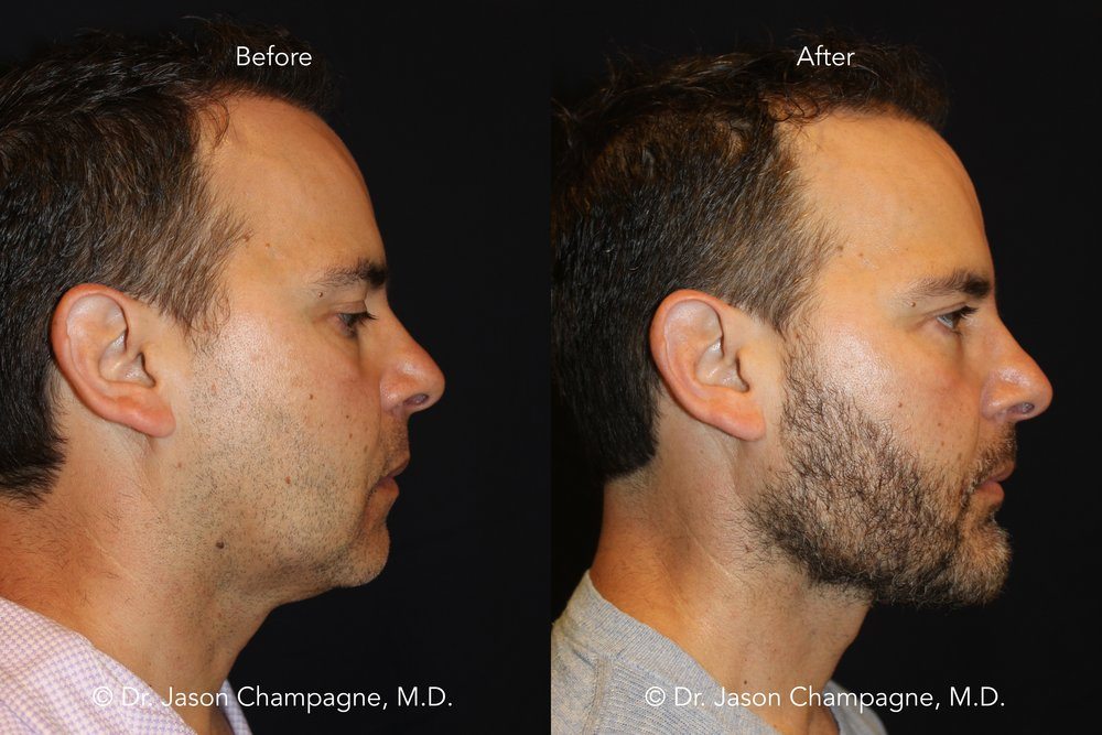 Dr-Jason-Champagne-Beverly-Hills-Plastic-Surgery-Custom-Chin-and-Jaw-Before-and-After-Profile