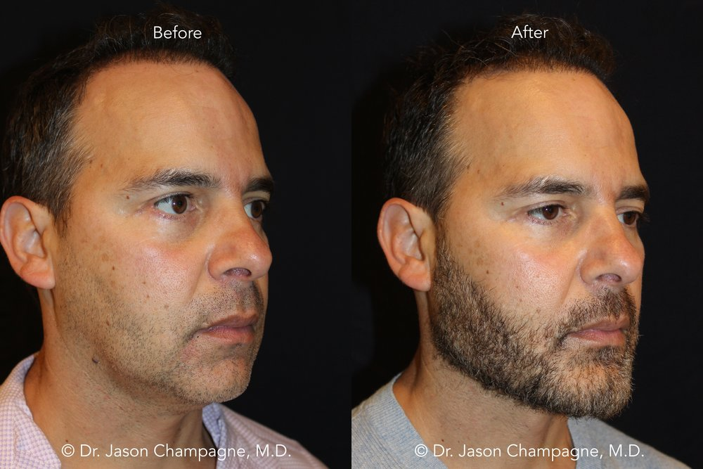 Patient received a custom chin and jaw implant along with a signature skin tightening procedure to further accentuate his new jawline.  In addition, Dr. Champagne performed fat transfer to his face to improve areas of volume loss and achieve a more youthful appearance.