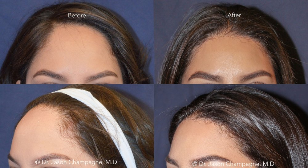 Dr-Jason-Champagne-Hairline-Lowering-Before-and-After