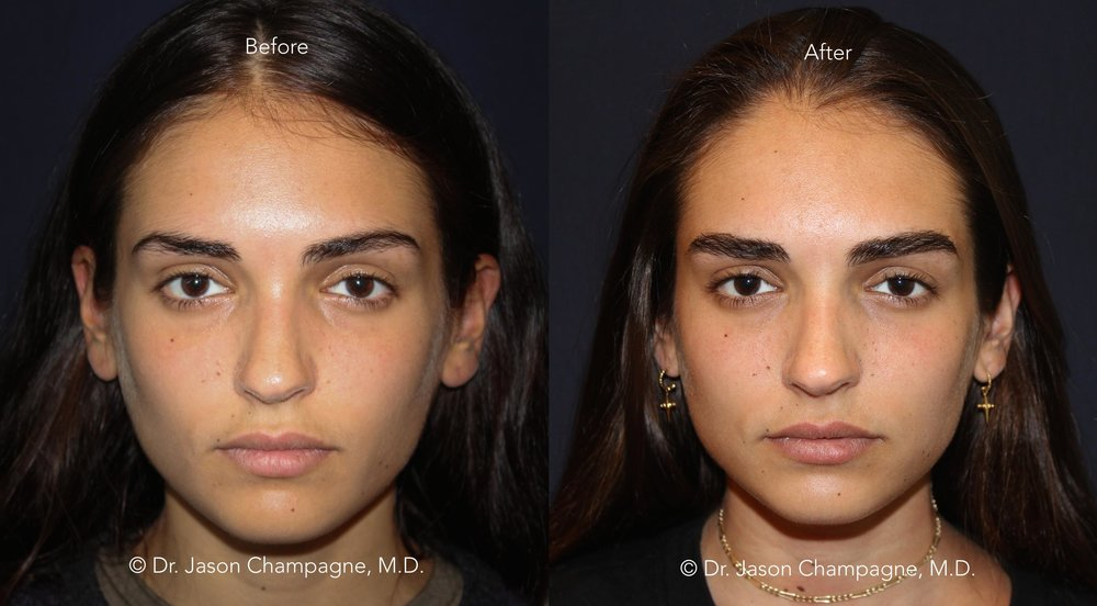 Eyebrow Hair Transplantation Before and After