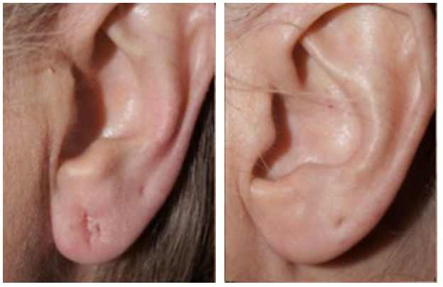 Dr-Jason-Champagne-Earlobe-Reconstruction-Before-and-After
