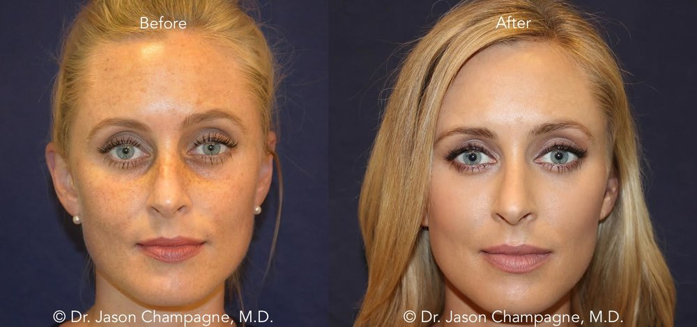 Dr-Jason-Champagne-Facial-Plastic-Surgery-Beverly-Hills-Laser-Skin-Rejuvenation-Before-and-After