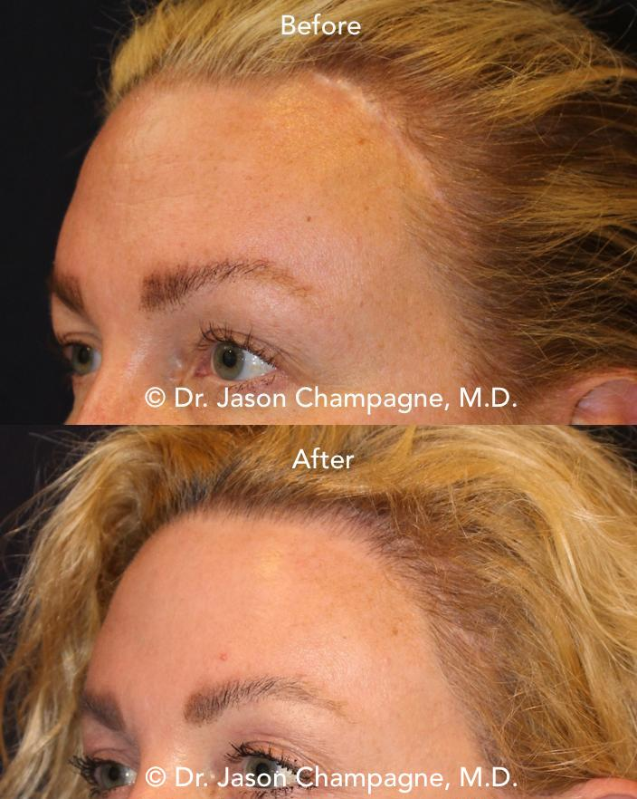 Dr-Jason-Champagne-Hairline-transplant-before-and-after.jpg