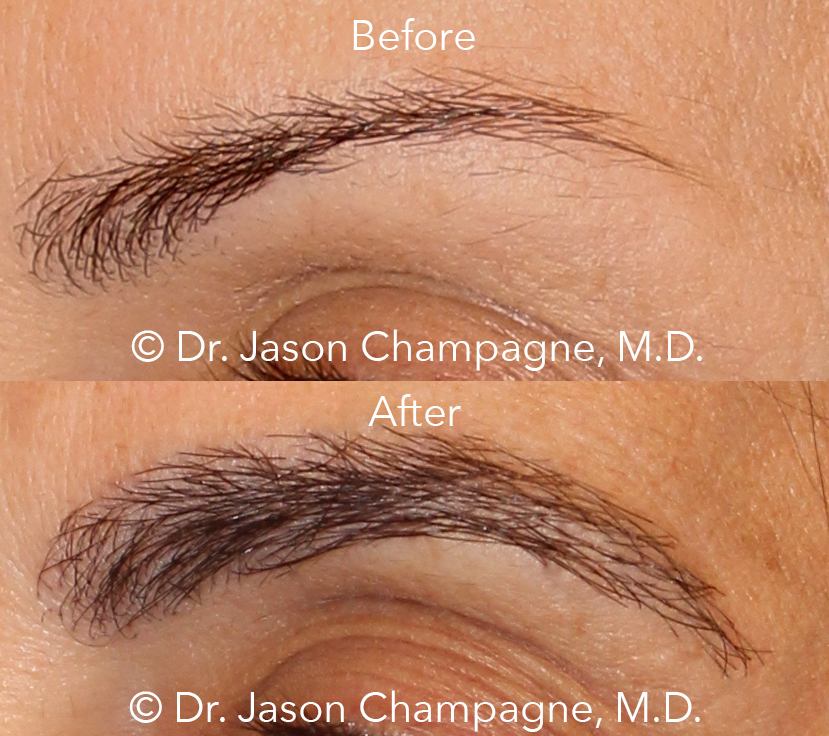 Dr-Jason-Champagne-Eyebrow-Transplant-Before-and-After
