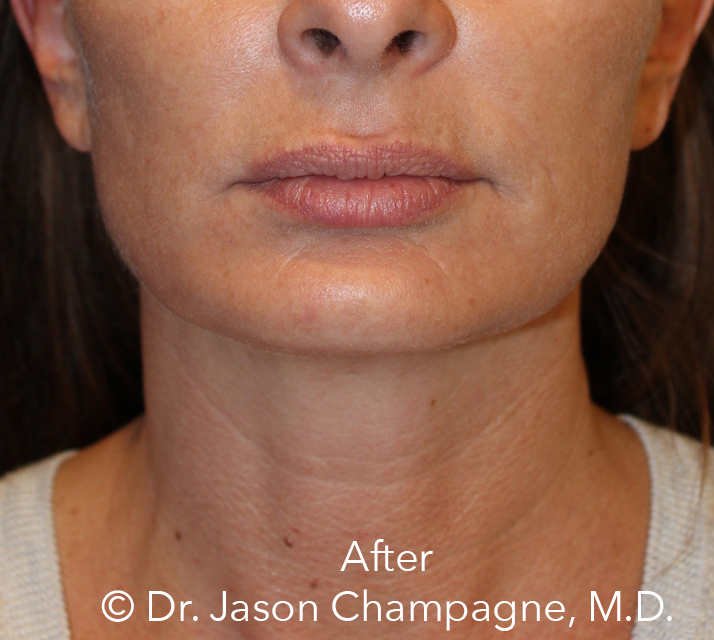 Dr-Jason-Champagne-mini facelift-necklift-chin-implant-CO2 laser-skin-resurfacing-After.jpg