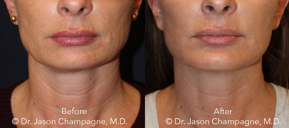 Dr-Jason-Champagne-mini facelift-necklift-chin-implant-CO2 laser-skin-resurfacing-Before-and-After