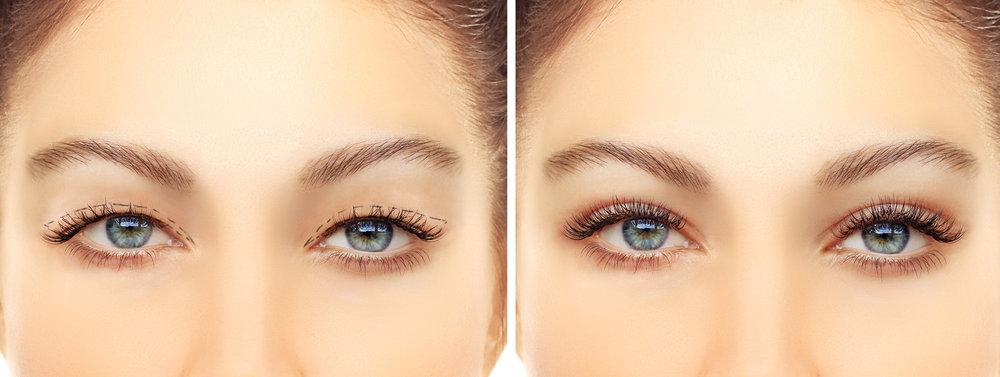 Blepharoplasty+Eyelid+Facial+Plastic+Surgery+Beverly+hills.jpg