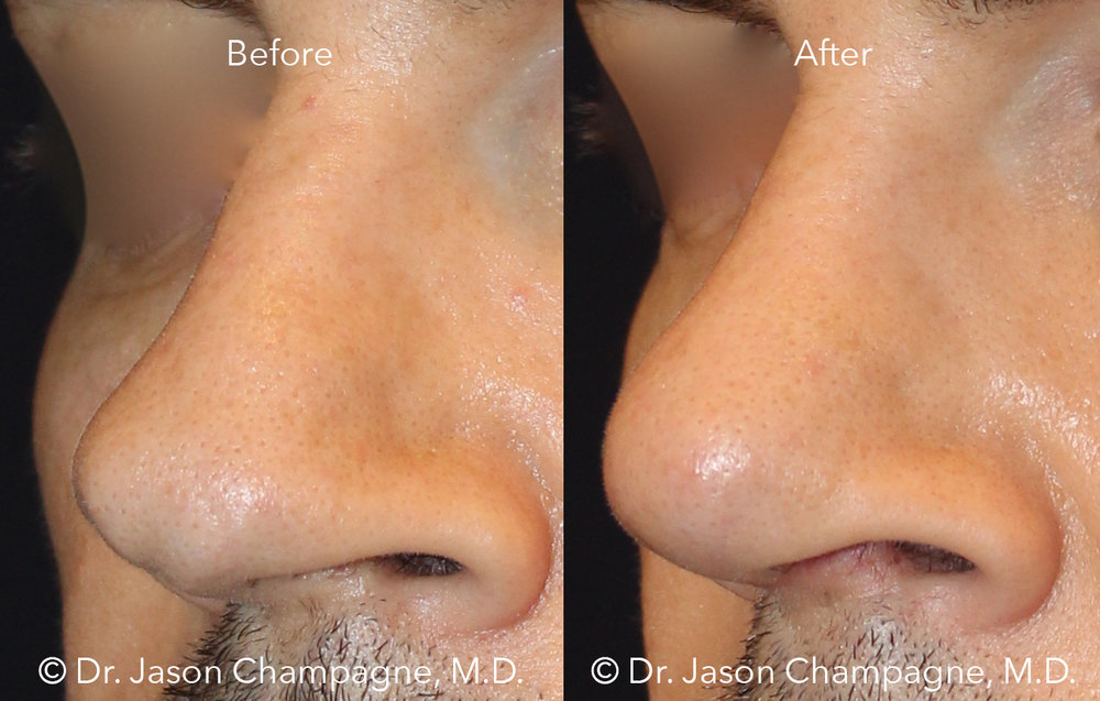 Dr-Jason-Champagne-Plastic-Surgery-tip-rhinoplasty-male-rhinoplasty-finesse-tip-rhinoplasty-before-and-after-3/4