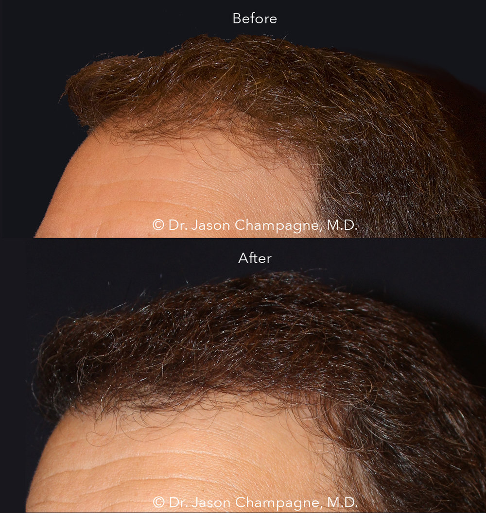 Dr-Jason-Champagne-Hair-Transplant-Before-and-After.jpg
