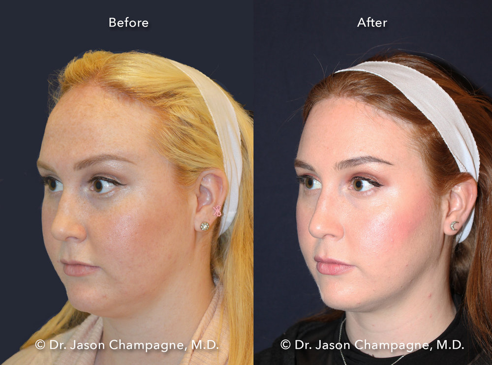 Dr-Jason-Champagne-Hairline-Lowering-Before-and-After-Left-3/4
