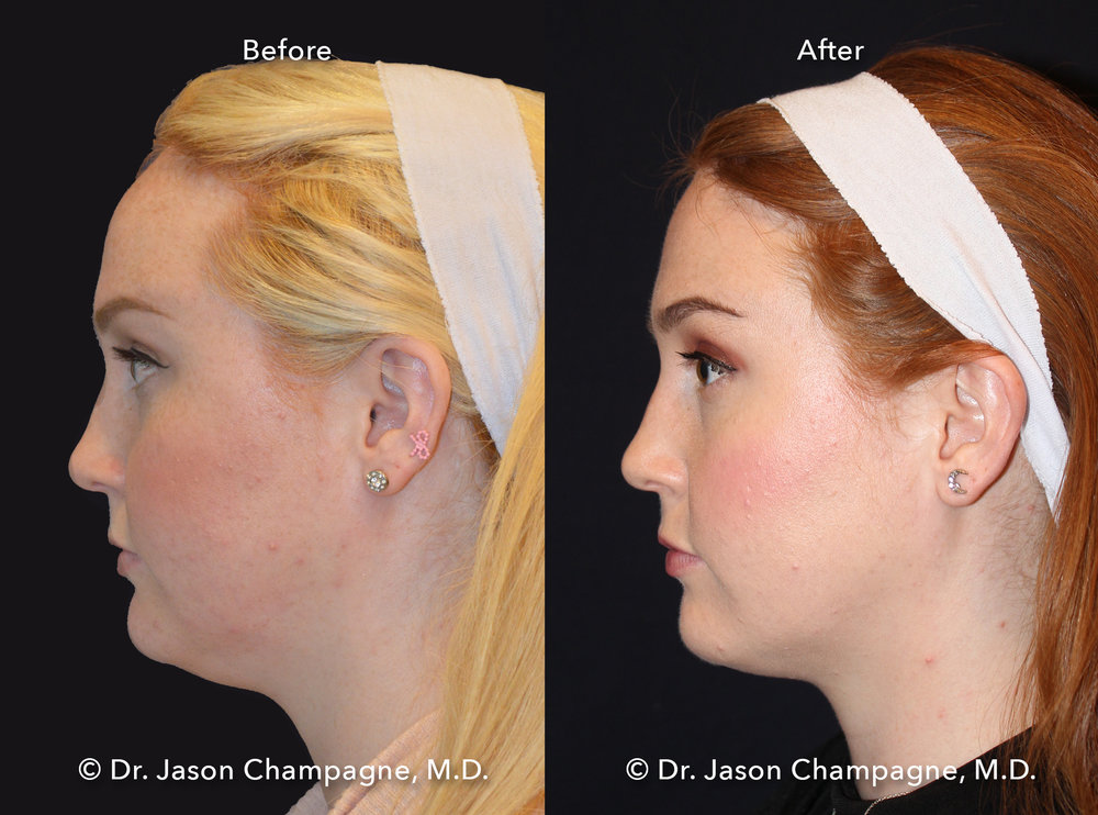 Dr-Jason-Champagne-Hairline-Lowering-Before-and-After-Left-Profile