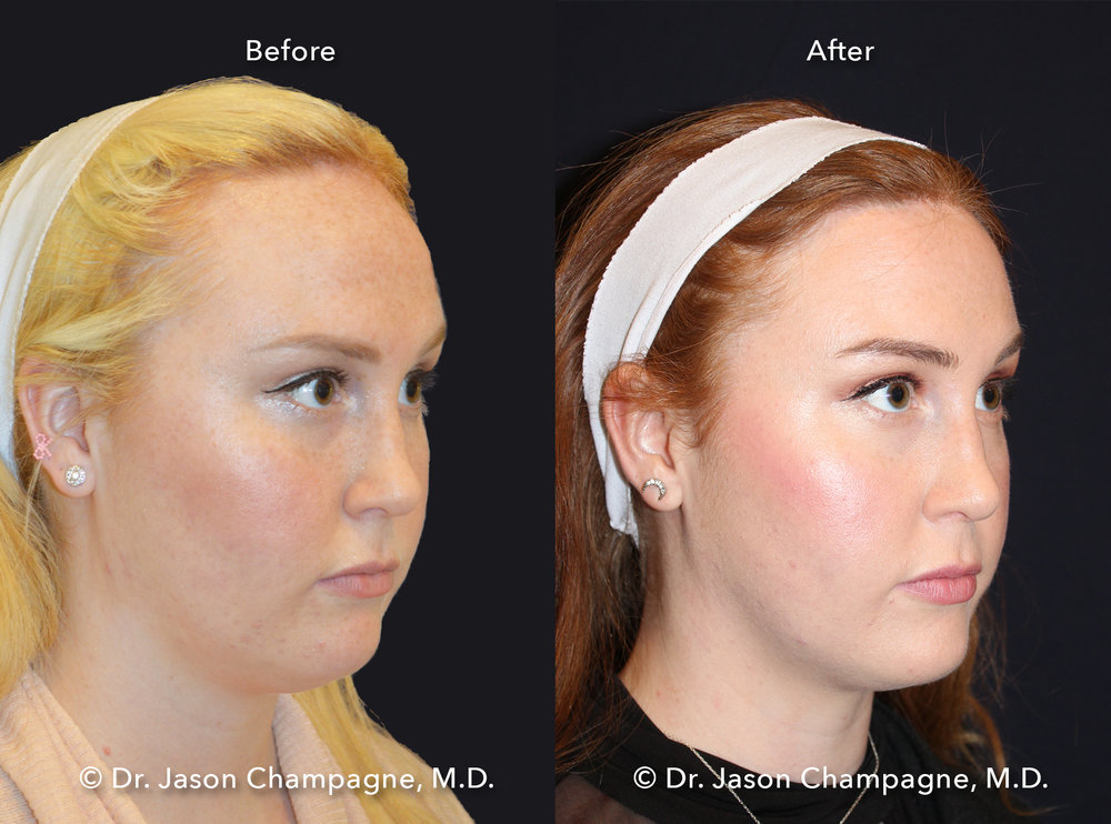 Dr-Jason-Champagne-Hairline-Lowering-Before-and-After-Right-3/4