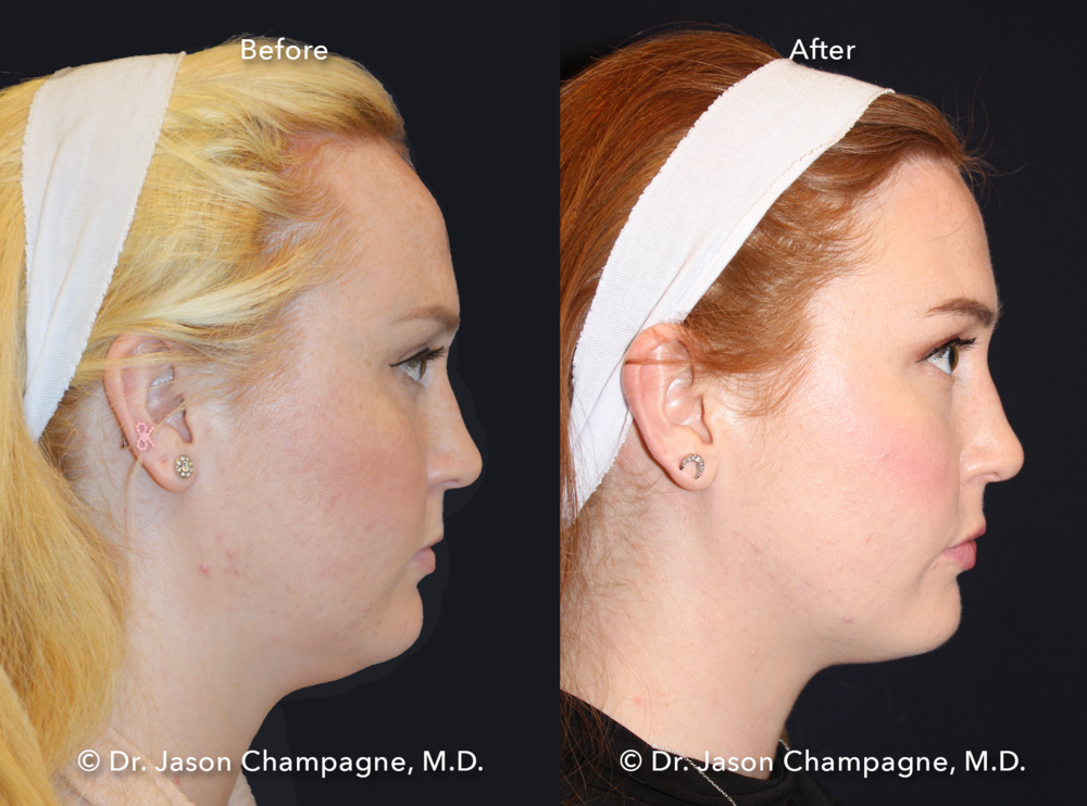 Dr-Jason-Champagne-Hairline-Lowering-Before-and-After-Right-Profile