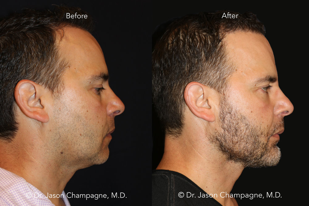 Dr-Jason-Champagne-Custom-Chin-and-Jaw-Hair-Transplantation-Before-and-After-Profile.jpg