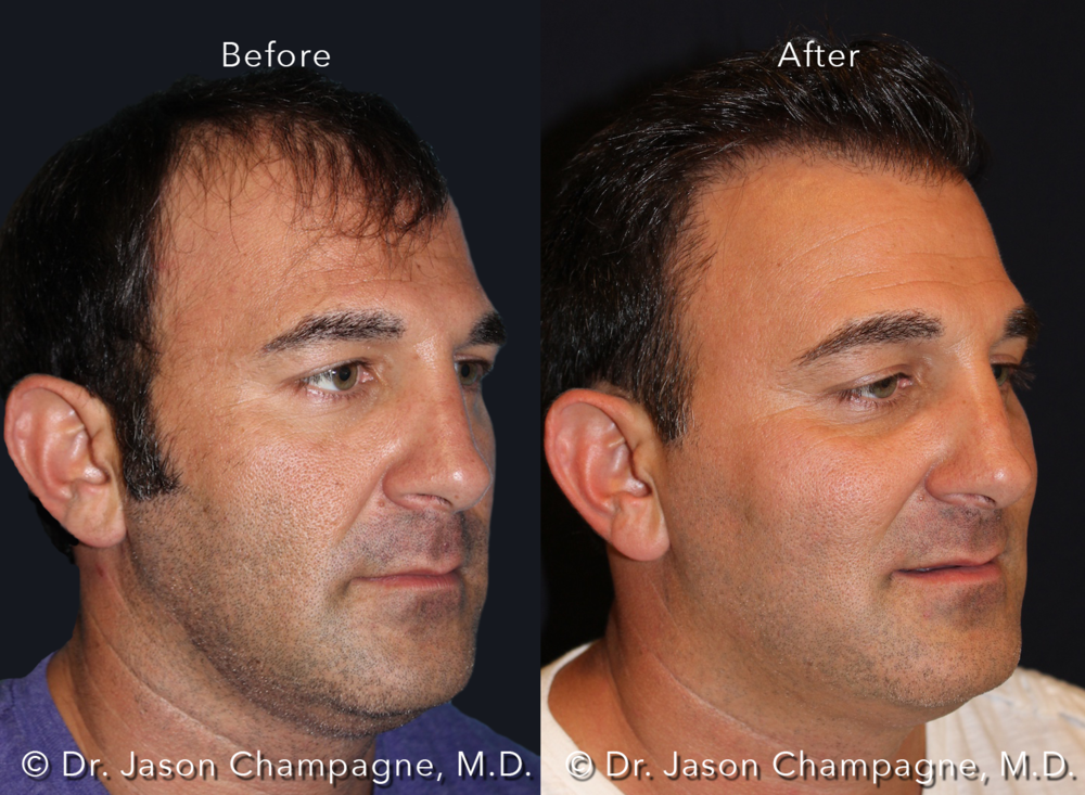 Dr-Jason-Champagne-Hair-Transplant-Before-and-After-Male-3/4