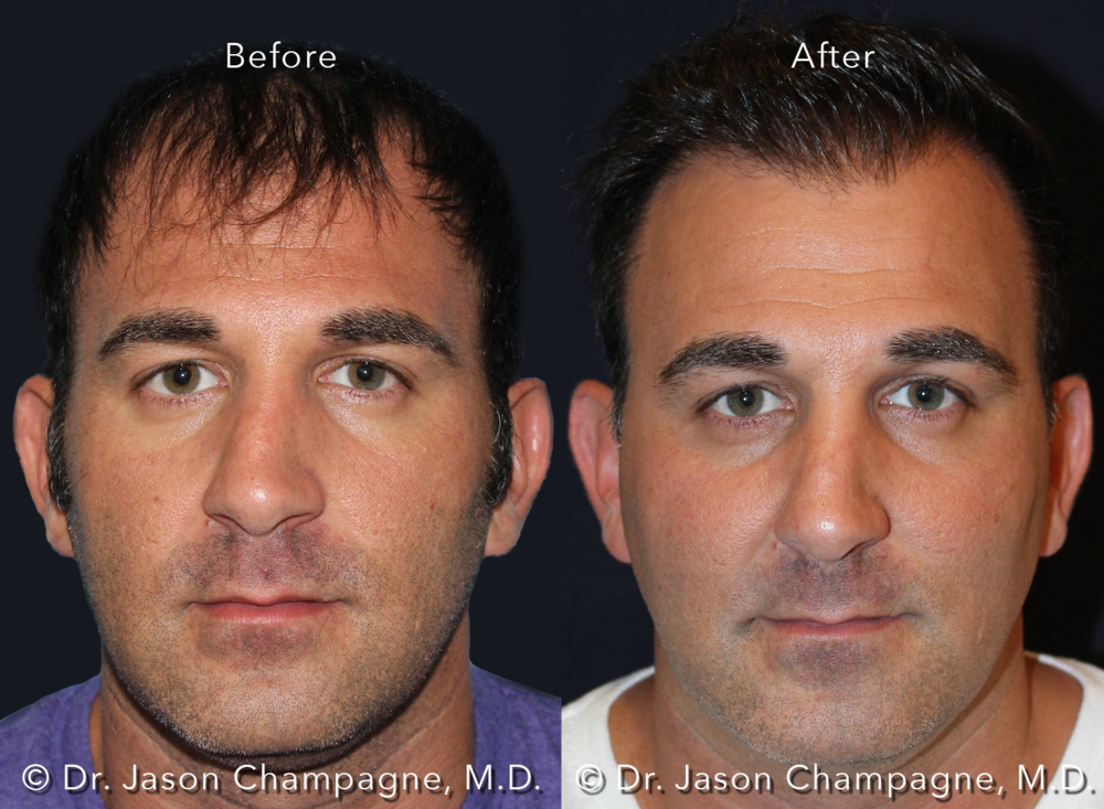 Dr-Jason-Champagne-Hair-Transplant-Before-and-After-Male-Front