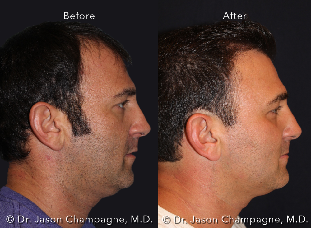 Dr-Jason-Champagne-Hair-Transplant-Before-and-After-Male-Profile