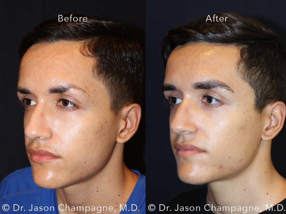Dr-Jason-Champagne-Male-Eyebrow-Hair-Transplant-Before-and-After-Left-3/4