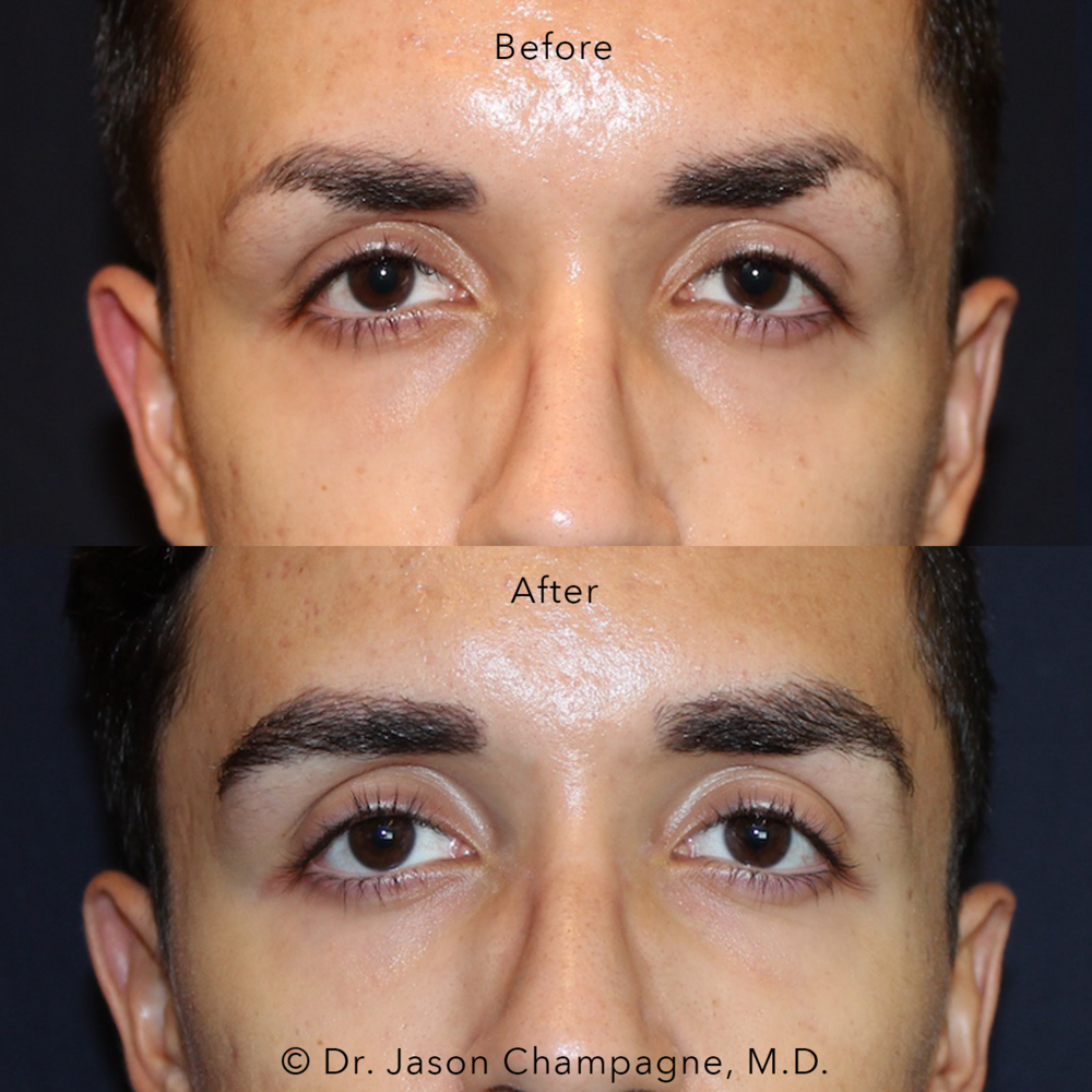 Dr-Jason-Champagne-Male-Eyebrow-Hair-Transplant-Before-and-After.png