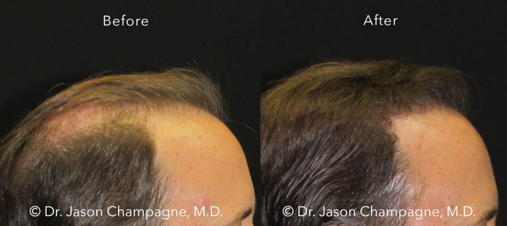 Dr-Jason-Champagne-Hair-Transplant-Before-and-After-Profile-7-26