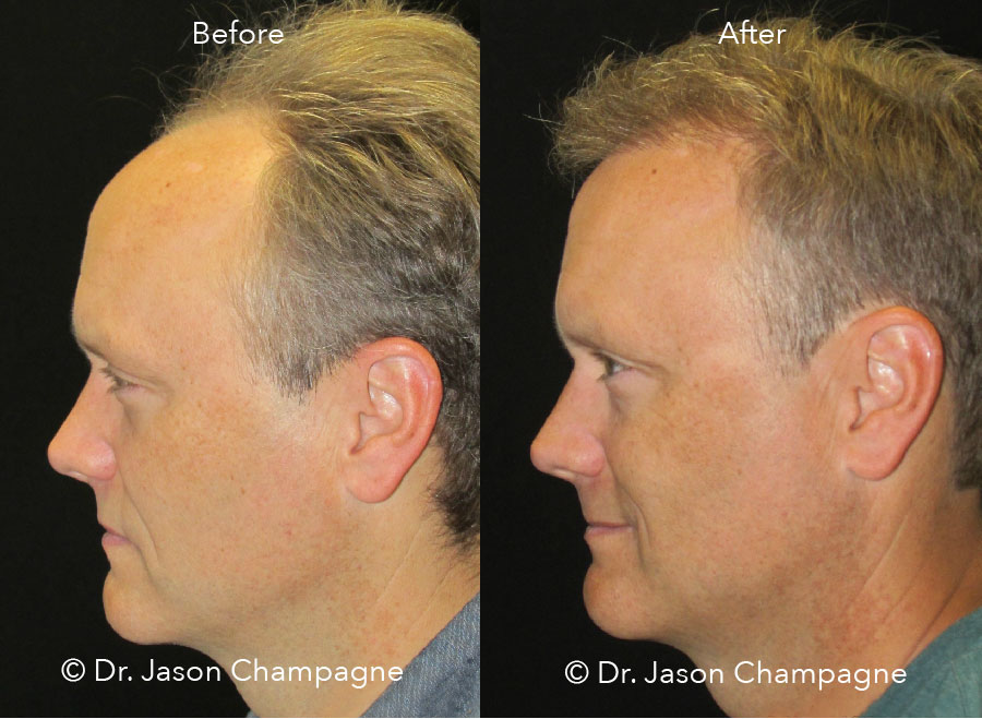 Dr-Jason-Champagne-Hair-Transplant-Before-and-After-Beverly-Hills-CA-Profile