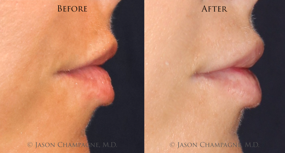 Jason-Champagne-Lip-Augmentation-Before-and-After
