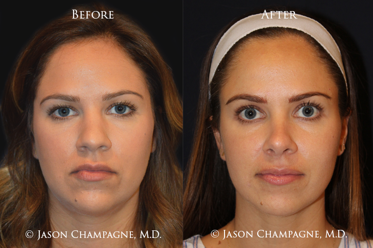 Jason-Champagne-Rhinoplasty-Before-and-After-3-Year-Post-op
