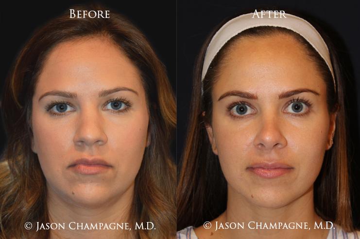 Dr. Jason Champagne Beverly Hills Plastic Surgery Rhinoplasty