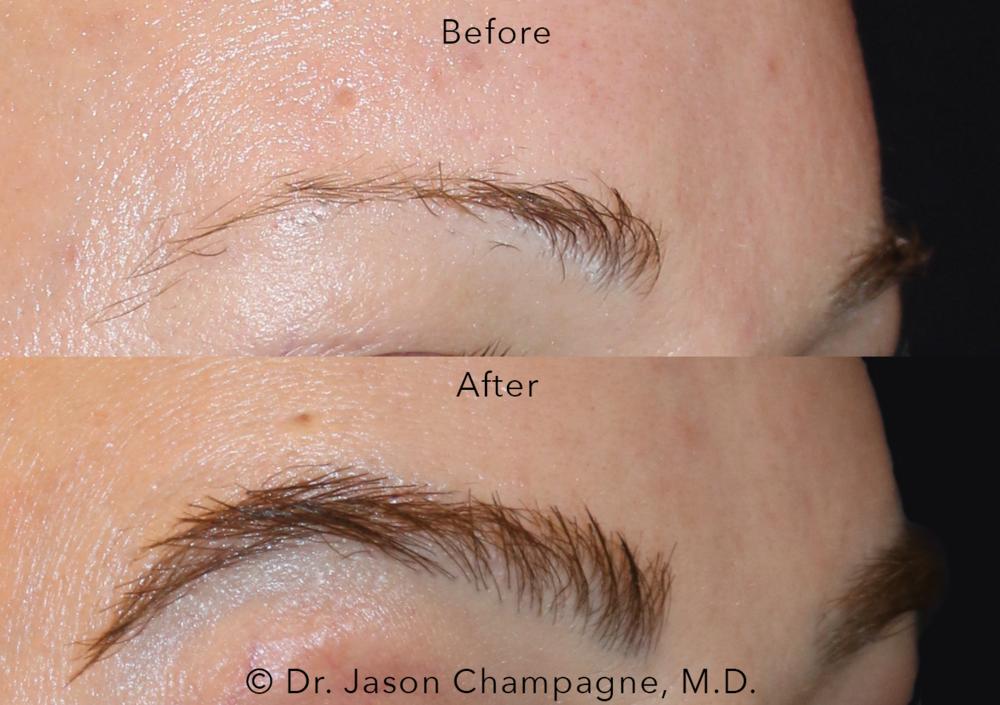 Dr. Jason Champagne, Plastic Surgeon Beverly Hills CA