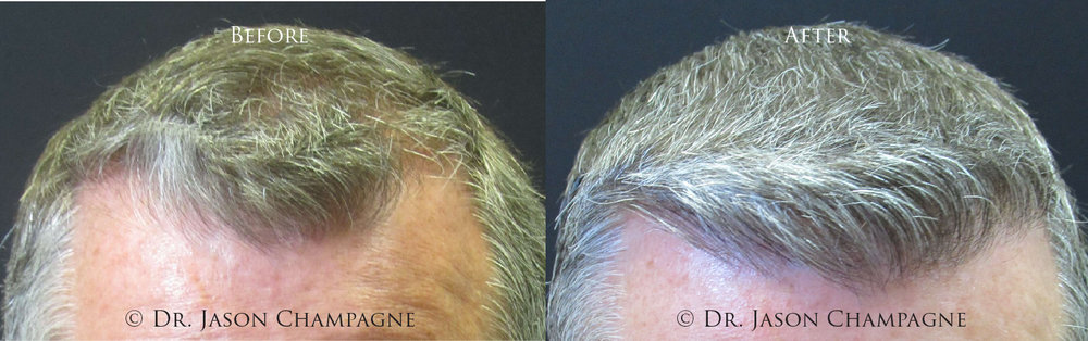 Dr-Jason-Champagne-Hair-Transplantation-Before-and-After-3-11-19 1