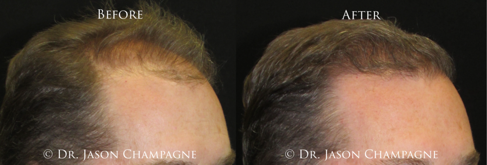 Dr-Jason-Champagne-Hair-Transplant-Plastic-Surgeon-Beverly-Hills-CA