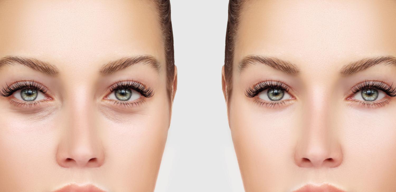 Dermal Filler Treatment Can Help Prevent Facial Aging