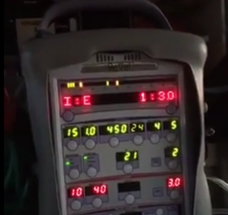 Facebook Live Broadcast - Intro to Ventilator Management: I:E Ratios: The When, Why, and How of manipulate I:E Ratios. #FlightCrit #TIPfromCRIT 🚁🤔