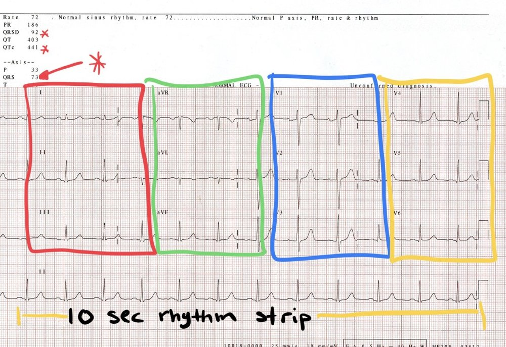 ecg-full-strip-139670590_4259x2922-2.jpg