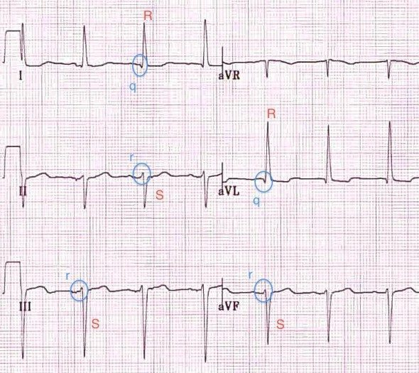 Left Anterior Hemiblock - Pathological Left AxisSmall Q waves with tall R waves in leads I and aVLSmall R waves with deep S waves in leads II, III, aVFQRS narrow or wideSmall think bundle of cardiac cellsSingle Blood Supply from LAD