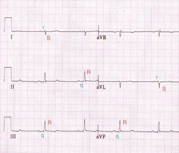 Left Posterior Hemiblock - Right Axis DeviationSmall R waves with deep S waves in leads I and aVLSmall Q waves with tall R waves in leads II, III and aVFQRS narrow or wideLarger/Thicker bundle of cardiac cellsTwo arteries supply bloodLPHB far less common and much more critical