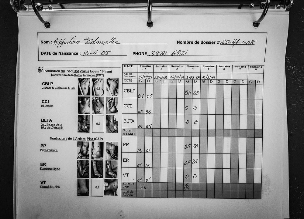 Meticulous records documenting the progress of clubfoot patients.