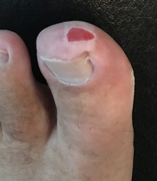 Big Toe Mishap.JPG